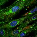 Electrical Stimulation Induces Myogenic Differentiation of Human Dermal Fibroblasts