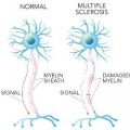 Cord Blood Therapy for Multiple Sclerosis